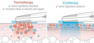 Rio Eye Refresh sowohl die Wärmebehandlung der Augen (Augenthermotherapie) als auch die Kältebehandlung (Kryotherapie).