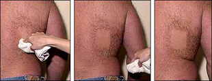 Revitol Hair Removal - Schritt 3