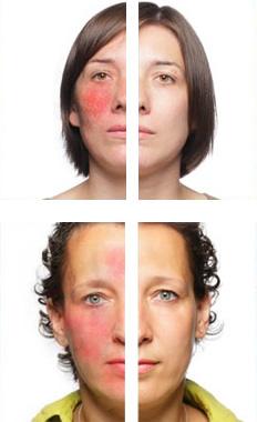 Effekte der Behandlung Revitol Rosacea Cream